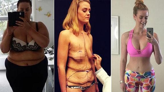 Como queda la piel despues de bajar de peso